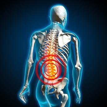 Rückenschmerzen, Behandlung mit Ergotherapie