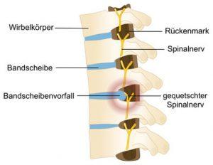 Ergotherapie beim Bandscheibenvorfall