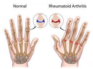 rheuma und Ergotherapie